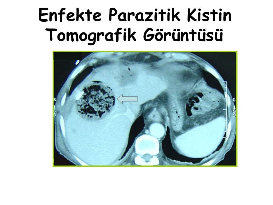 Enfekte Parazitik Kistin