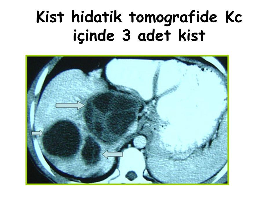 Kist hidatik tomografide Kc içinde 3 adet kist