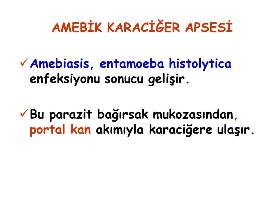 AMEBİK KARACİĞER APSESİ