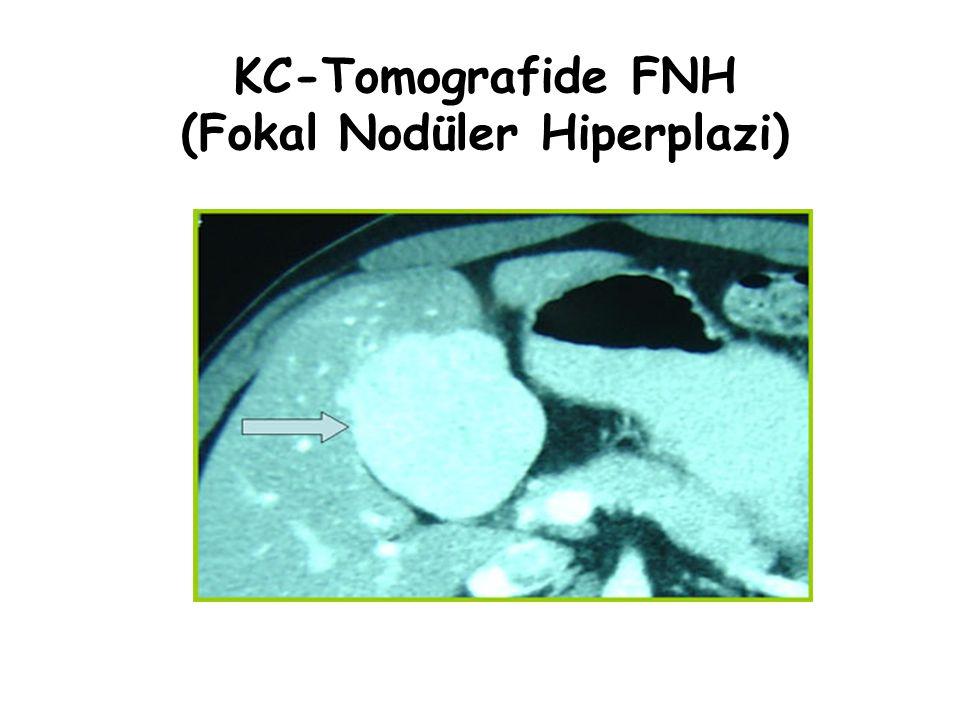 KC-Tomografide FNH (Fokal Nodüler Hiperplazi)