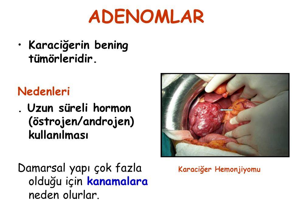 ADENOMLAR Karaciğerin bening tümörleridir. Nedenleri