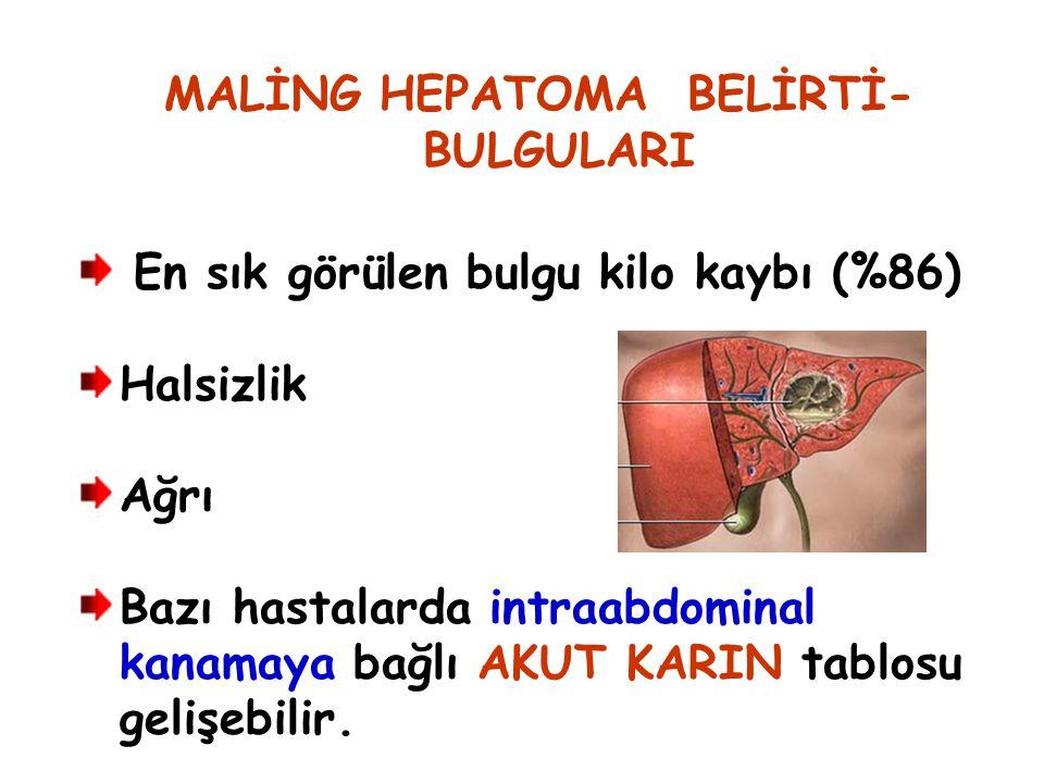 MALİNG HEPATOMA BELİRTİ- BULGULARI
