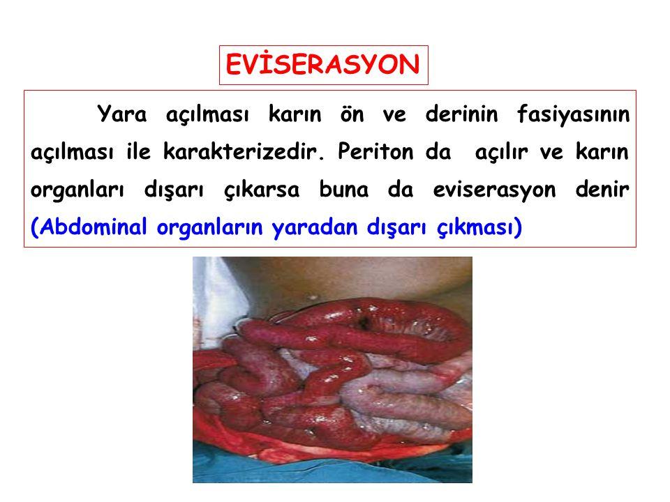 EVİSERASYON