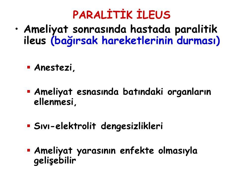 PARALİTİK İLEUS Ameliyat sonrasında hastada paralitik ileus (bağırsak hareketlerinin durması) Anestezi,
