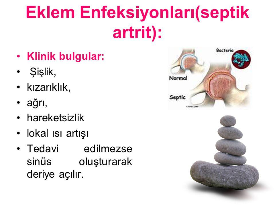 Eklem Enfeksiyonları(septik artrit):
