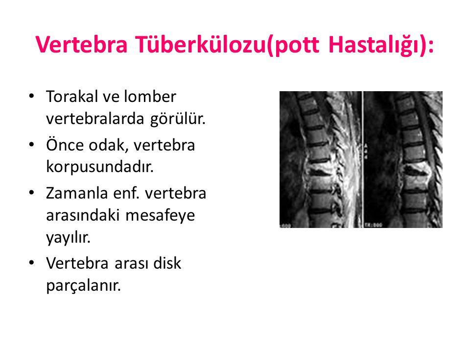 Vertebra Tüberkülozu(pott Hastalığı):