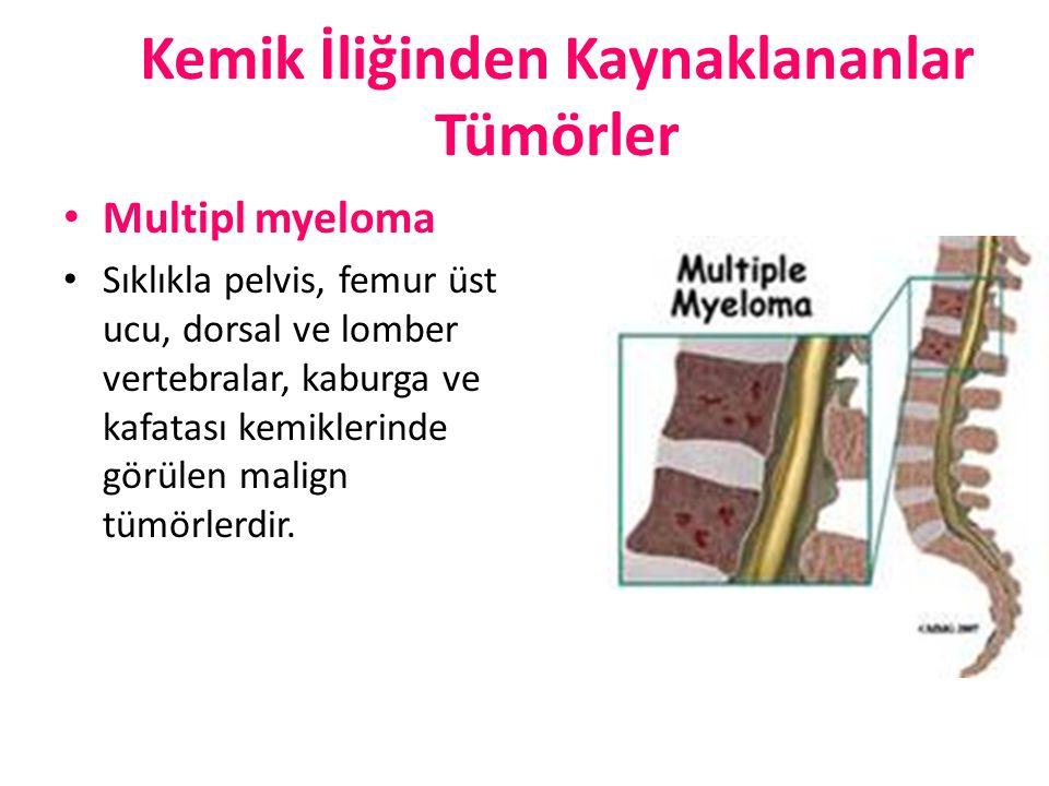 Kemik İliğinden Kaynaklananlar Tümörler