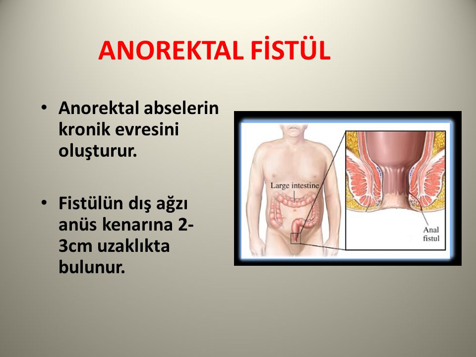 ANOREKTAL FİSTÜL Anorektal abselerin kronik evresini oluşturur.
