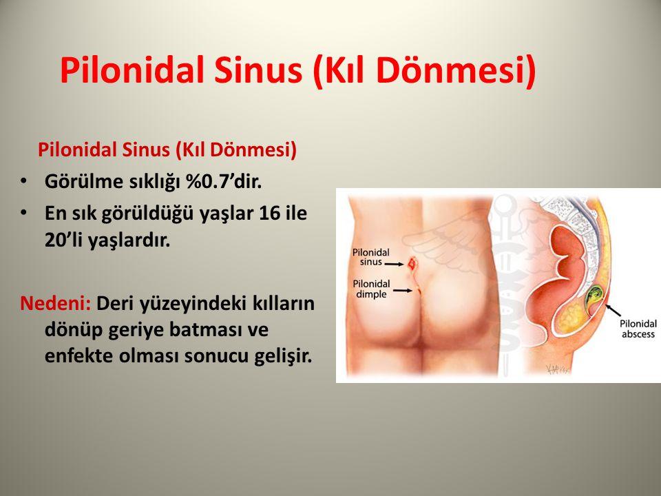 Pilonidal Sinus (Kıl Dönmesi)
