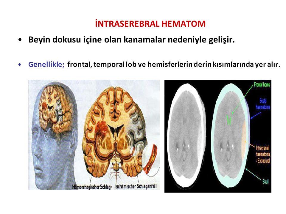 İNTRASEREBRAL HEMATOM