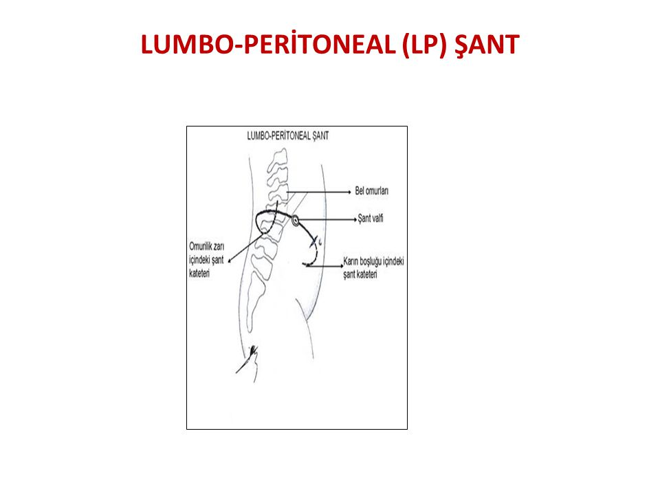 LUMBO-PERİTONEAL (LP) ŞANT