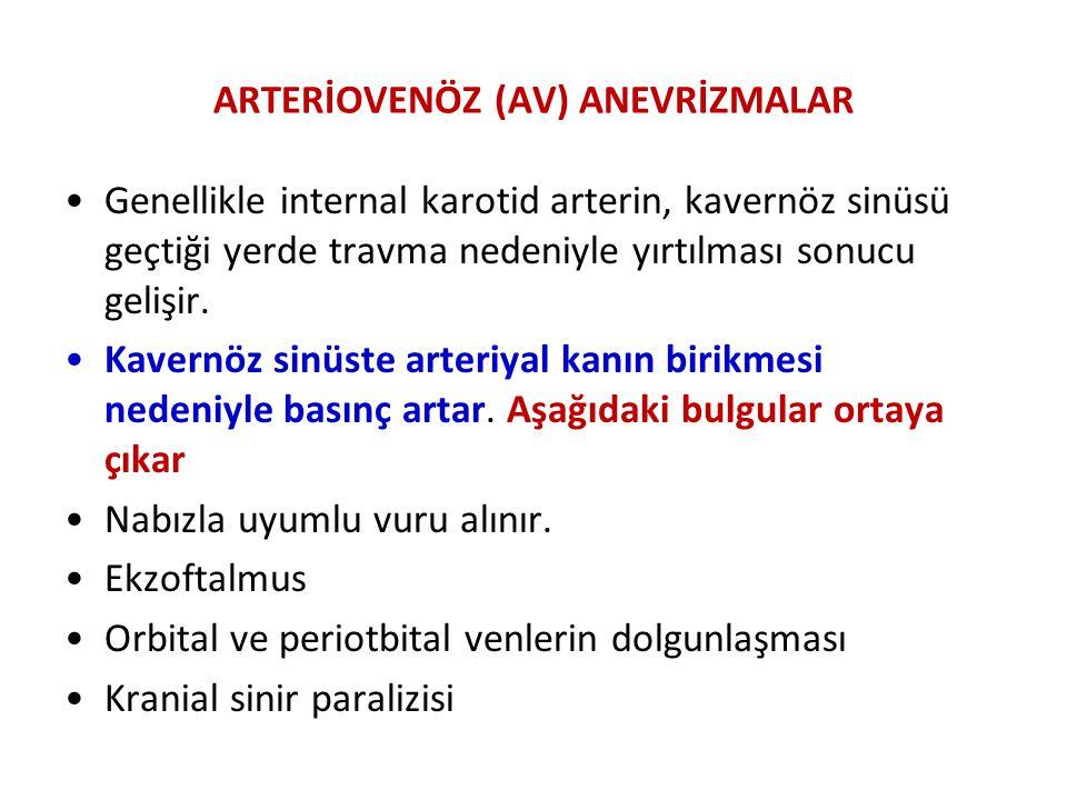 ARTERİOVENÖZ (AV) ANEVRİZMALAR