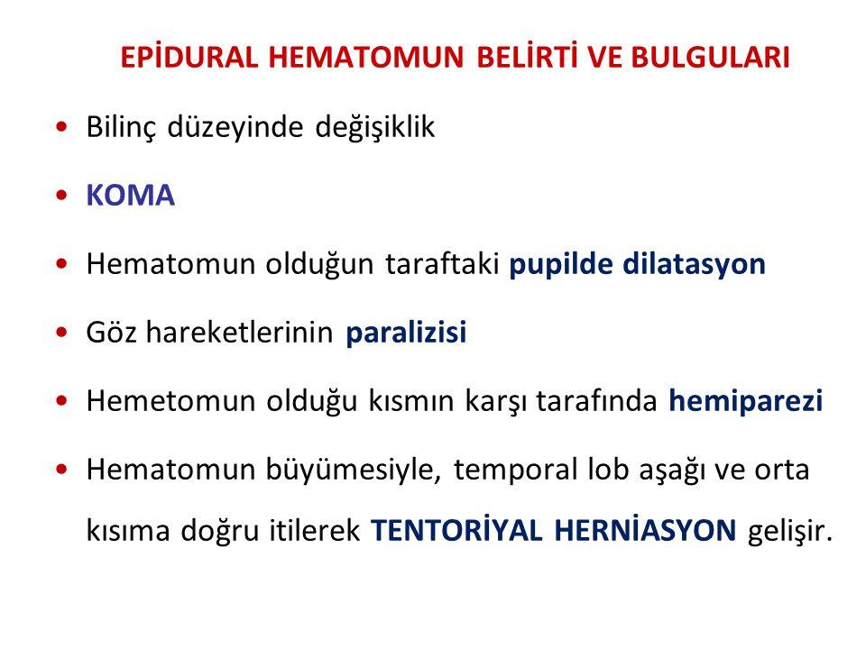 EPİDURAL HEMATOMUN BELİRTİ VE BULGULARI