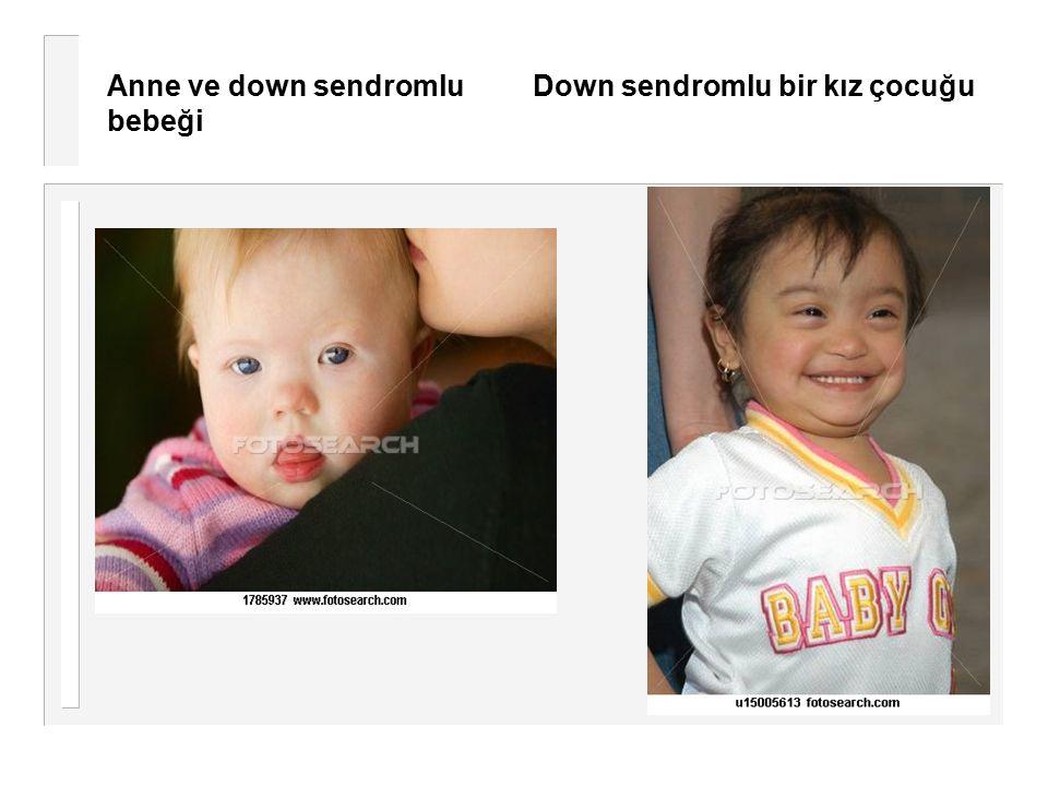 Anne ve down sendromlu Down sendromlu bir kız çocuğu bebeği