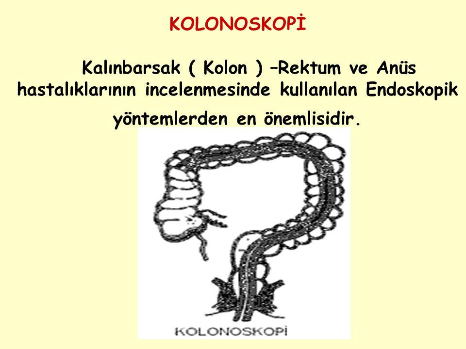 KOLONOSKOPİ Kalınbarsak ( Kolon ) –Rektum ve Anüs hastalıklarının incelenmesinde kullanılan Endoskopik yöntemlerden en önemlisidir.