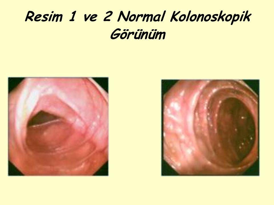 Resim 1 ve 2 Normal Kolonoskopik Görünüm
