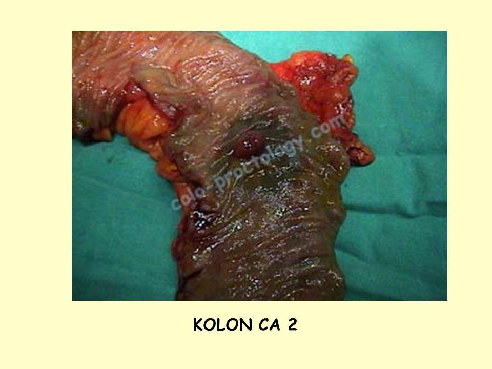 KOLON CA 2