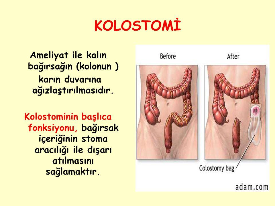KOLOSTOMİ Ameliyat ile kalın bağırsağın (kolonun )