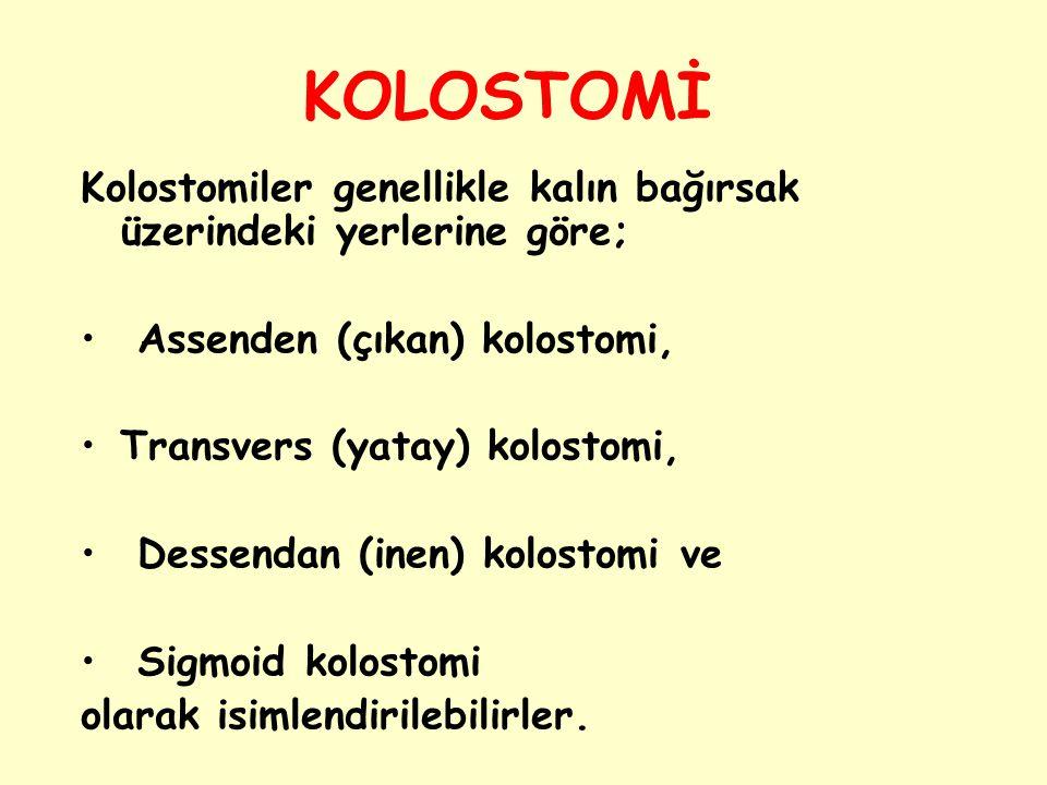 KOLOSTOMİ Kolostomiler genellikle kalın bağırsak üzerindeki yerlerine göre; Assenden (çıkan) kolostomi,