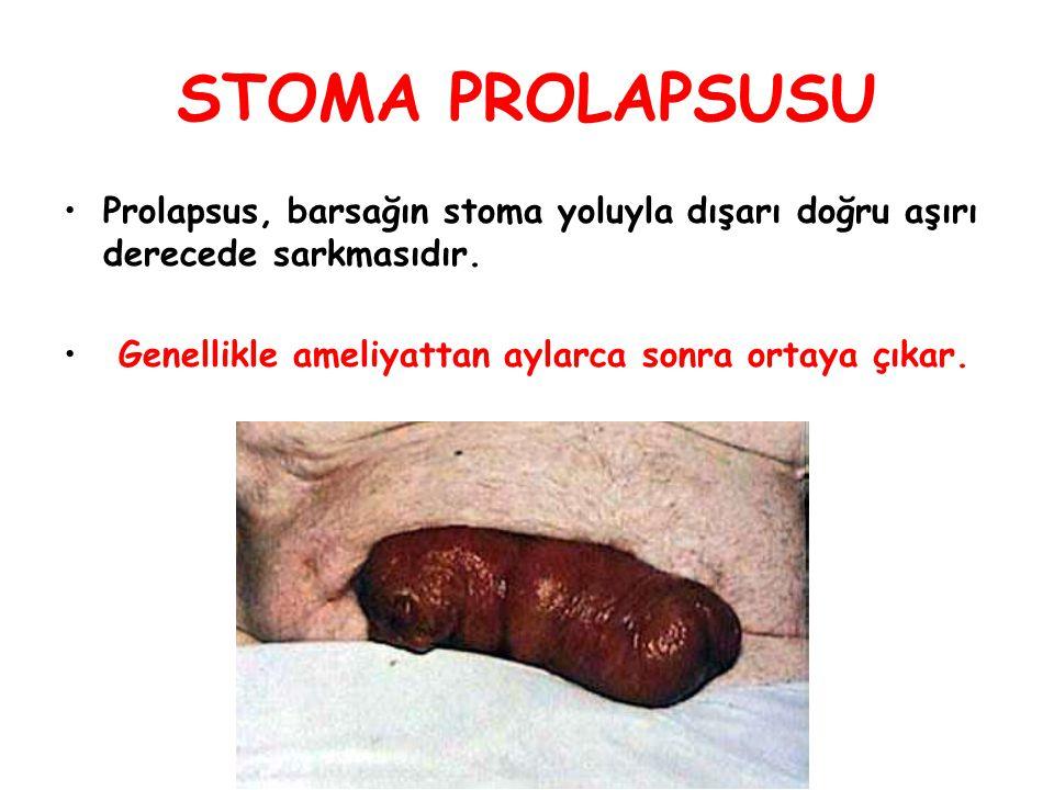 STOMA PROLAPSUSU Prolapsus, barsağın stoma yoluyla dışarı doğru aşırı derecede sarkmasıdır.