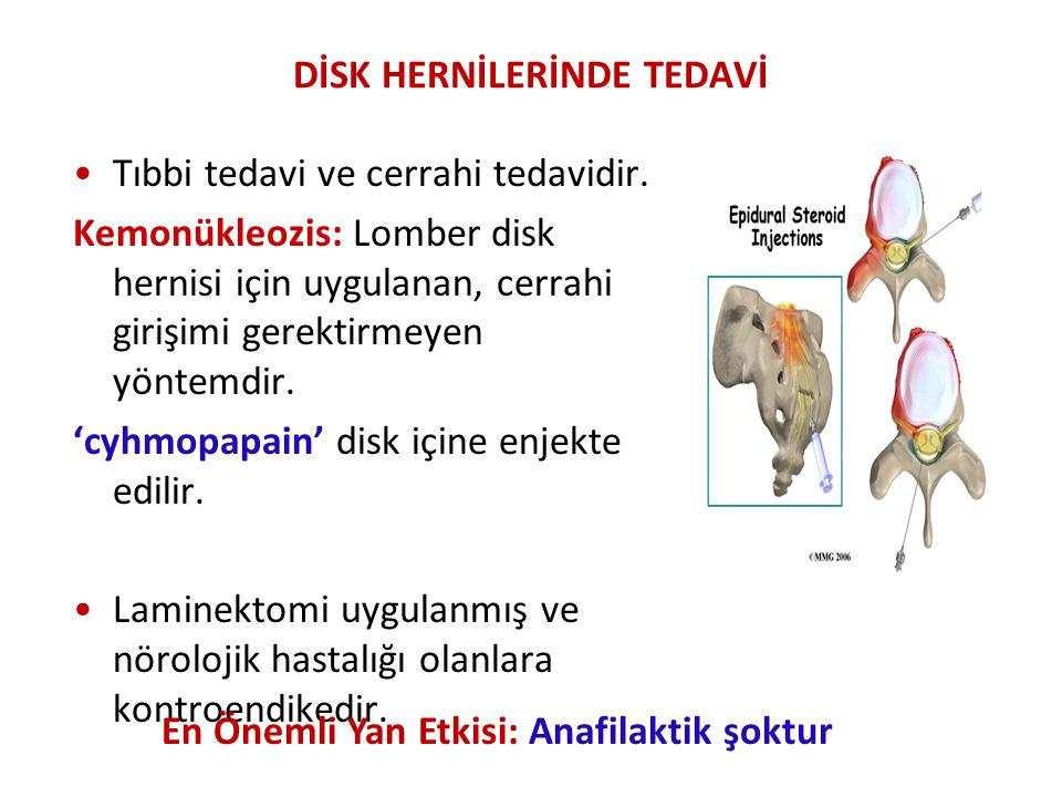 DİSK HERNİLERİNDE TEDAVİ