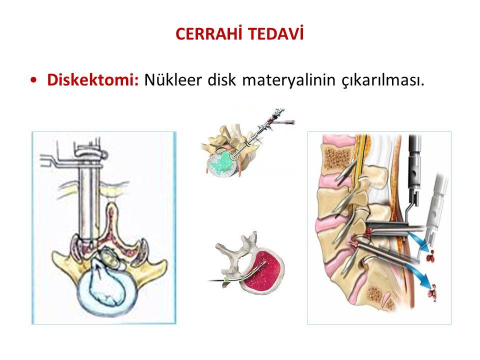 CERRAHİ TEDAVİ Diskektomi: Nükleer disk materyalinin çıkarılması.