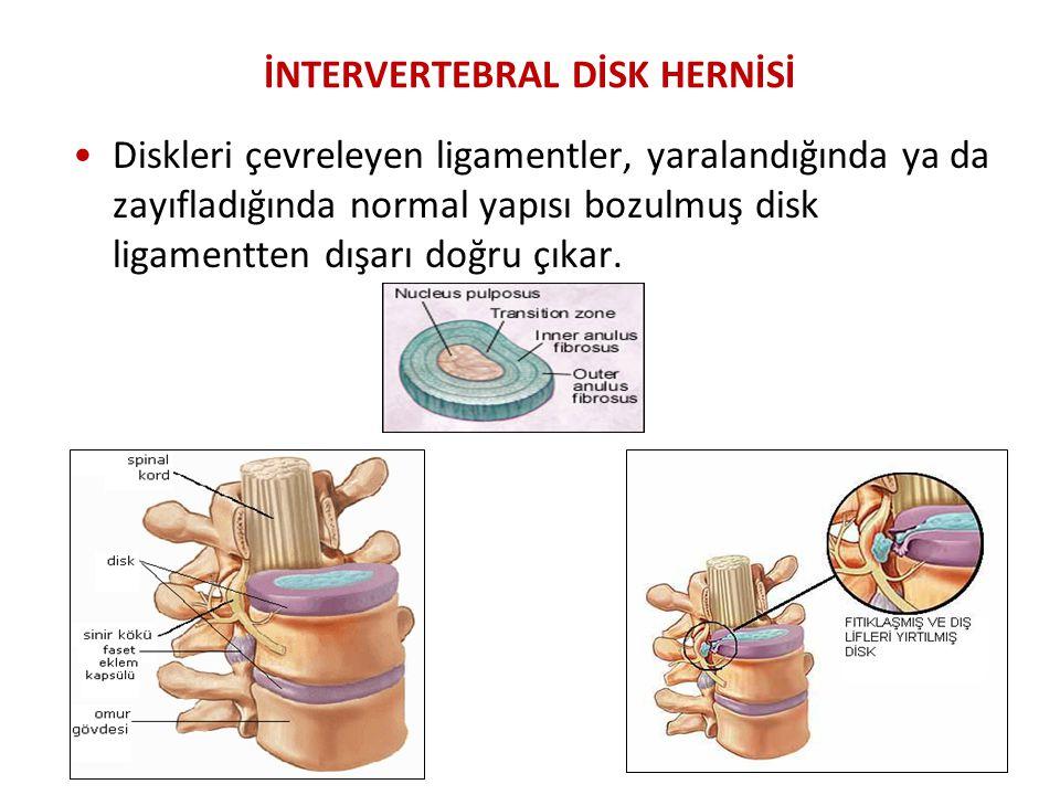 İNTERVERTEBRAL DİSK HERNİSİ