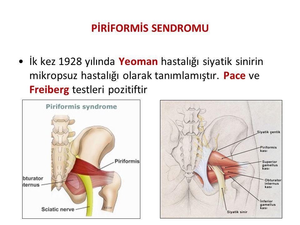 PİRİFORMİS SENDROMU