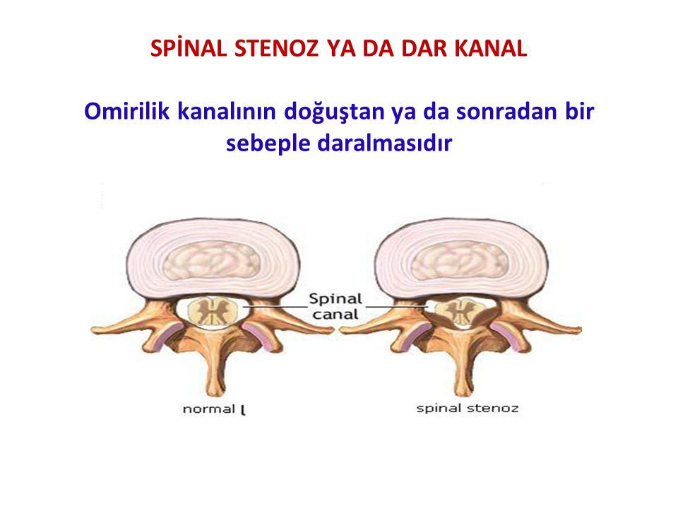 SPİNAL STENOZ YA DA DAR KANAL Omirilik kanalının doğuştan ya da sonradan bir sebeple daralmasıdır