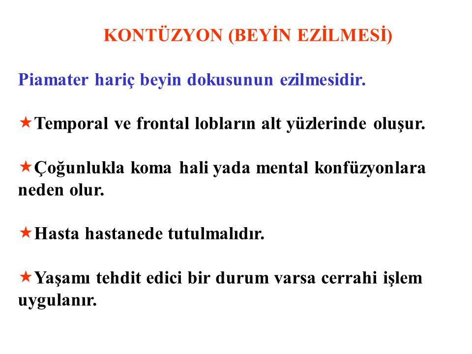 KONTÜZYON (BEYİN EZİLMESİ)