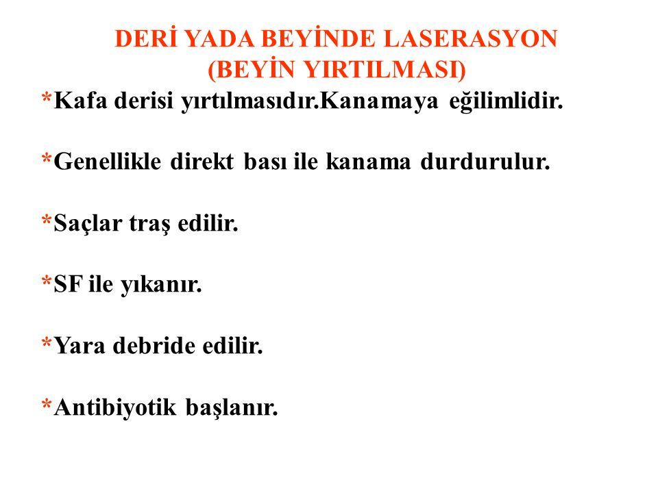 DERİ YADA BEYİNDE LASERASYON
