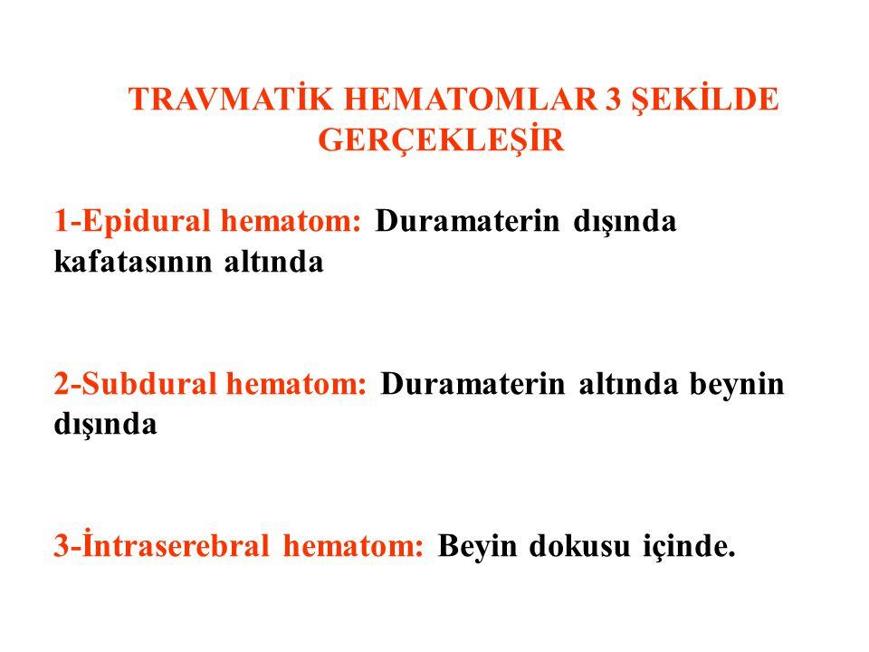 TRAVMATİK HEMATOMLAR 3 ŞEKİLDE GERÇEKLEŞİR