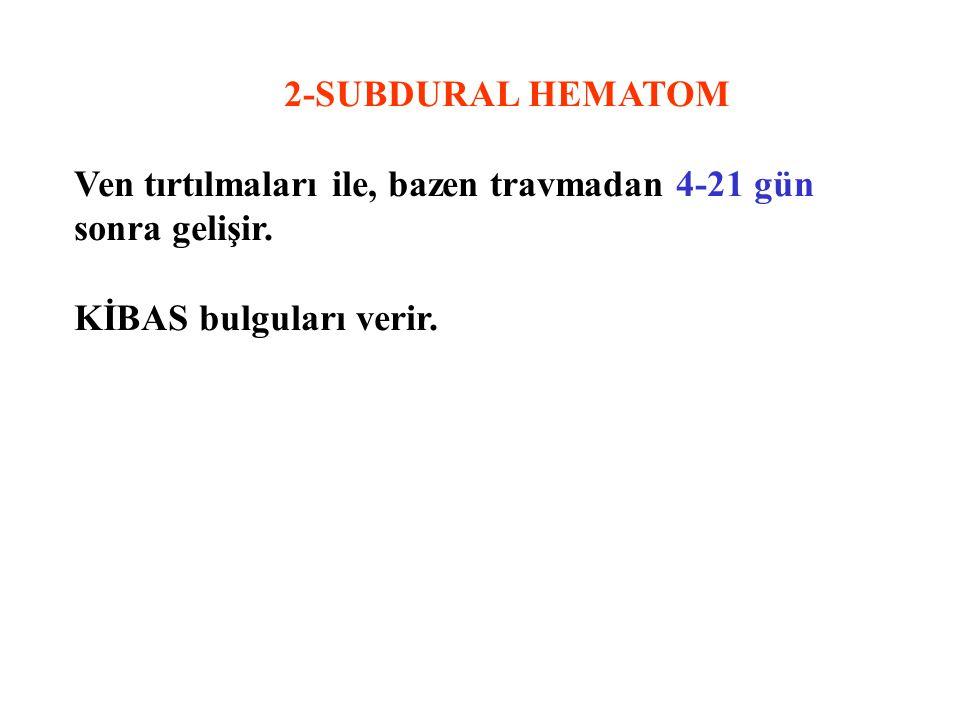 2-SUBDURAL HEMATOM Ven tırtılmaları ile, bazen travmadan 4-21 gün sonra gelişir.