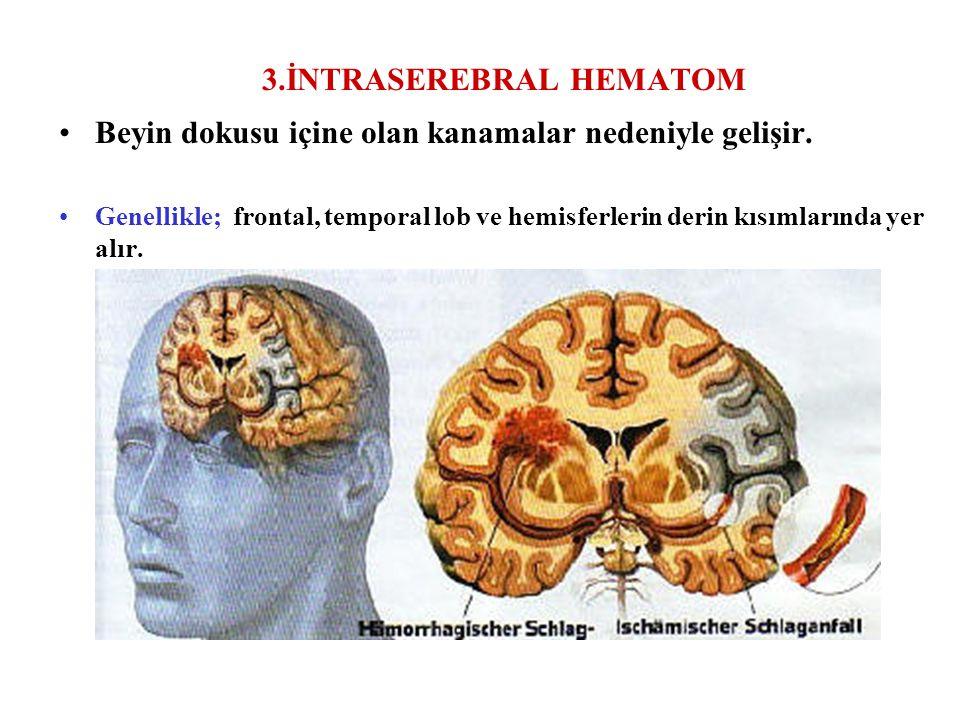 3.İNTRASEREBRAL HEMATOM