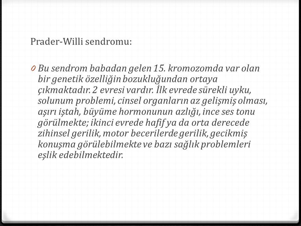 Prader-Willi sendromu: