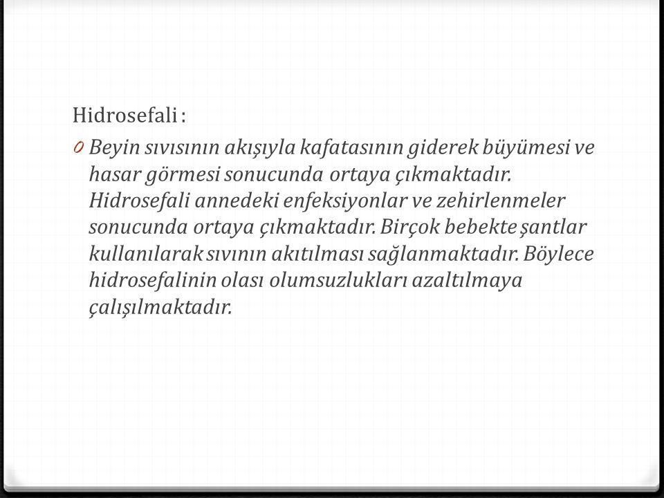 Hidrosefali :