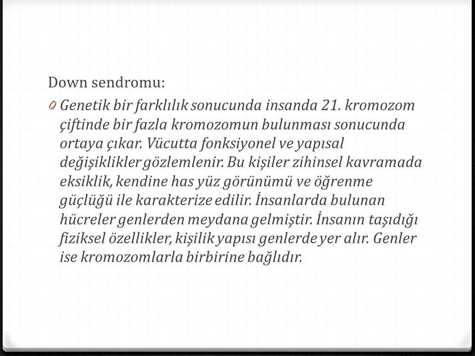 Down sendromu: