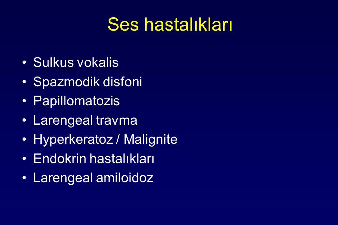 Ses hastalıkları Sulkus vokalis Spazmodik disfoni Papillomatozis