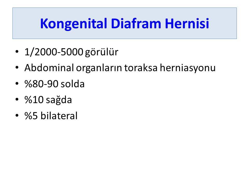 Kongenital Diafram Hernisi