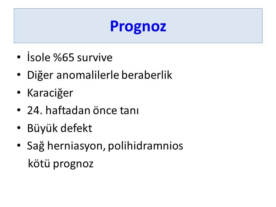 Prognoz İsole %65 survive Diğer anomalilerle beraberlik Karaciğer