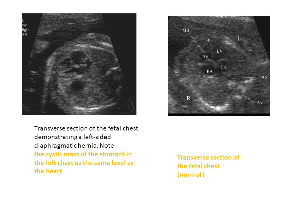 Transverse section of the fetal chest