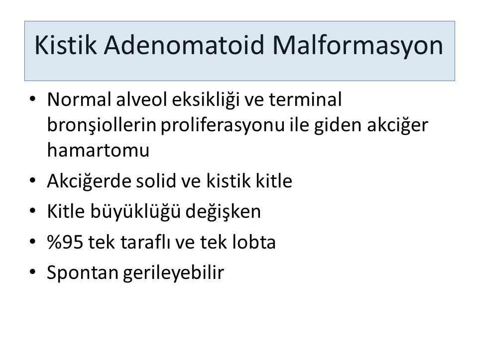 Kistik Adenomatoid Malformasyon