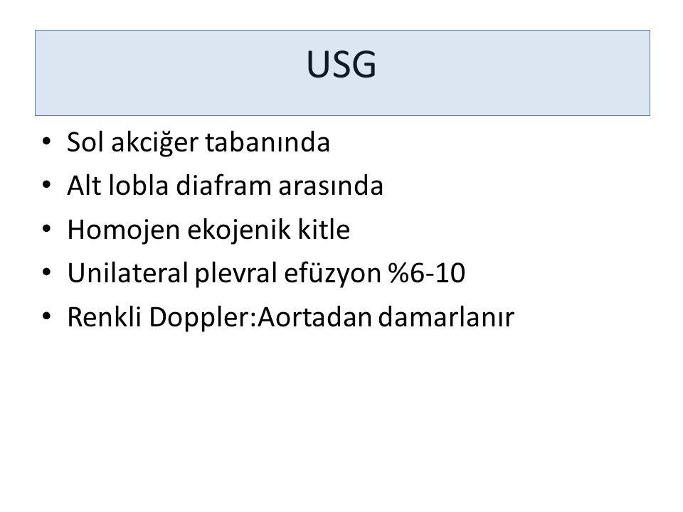 USG Sol akciğer tabanında Alt lobla diafram arasında