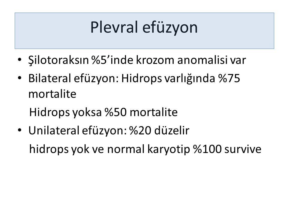 Plevral efüzyon Şilotoraksın %5'inde krozom anomalisi var