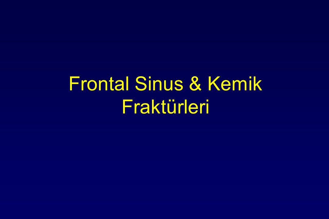 Frontal Sinus & Kemik Fraktürleri
