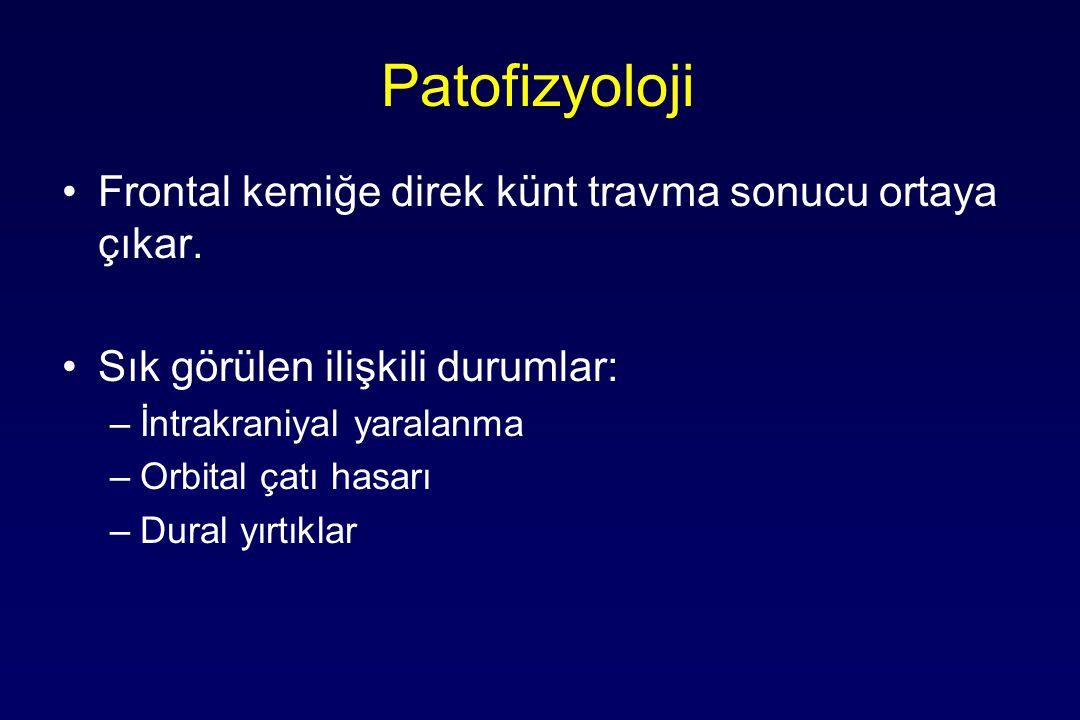 Patofizyoloji Frontal kemiğe direk künt travma sonucu ortaya çıkar.