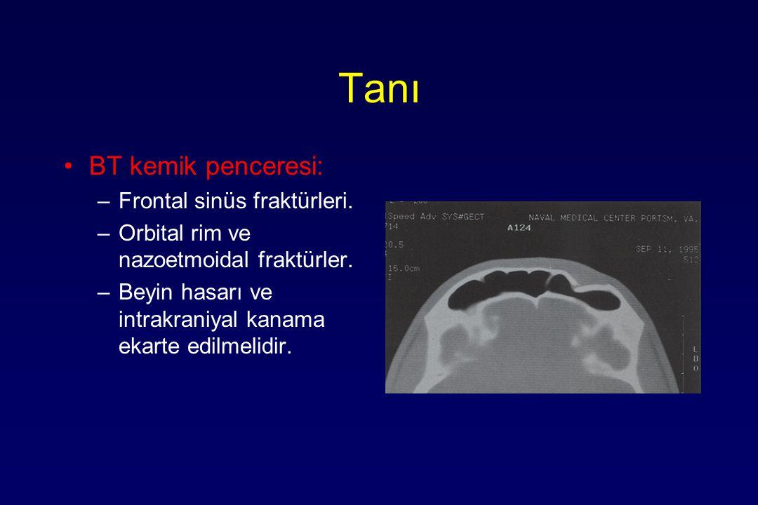 Tanı BT kemik penceresi: Frontal sinüs fraktürleri.