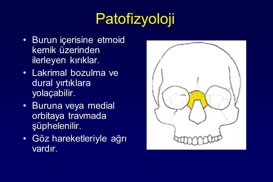 Patofizyoloji Burun içerisine etmoid kemik üzerinden ilerleyen kırıklar. Lakrimal bozulma ve dural yırtıklara yolaçabilir.