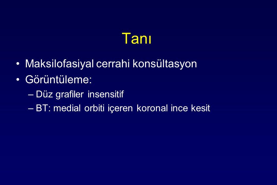 Tanı Maksilofasiyal cerrahi konsültasyon Görüntüleme: