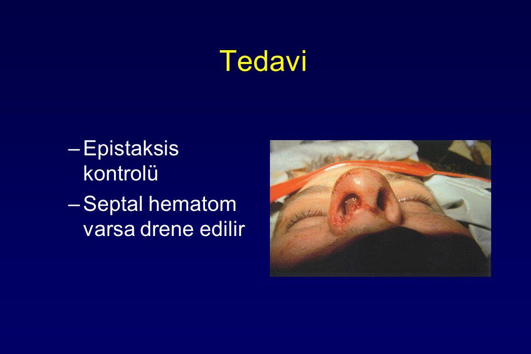 Tedavi Epistaksis kontrolü Septal hematom varsa drene edilir
